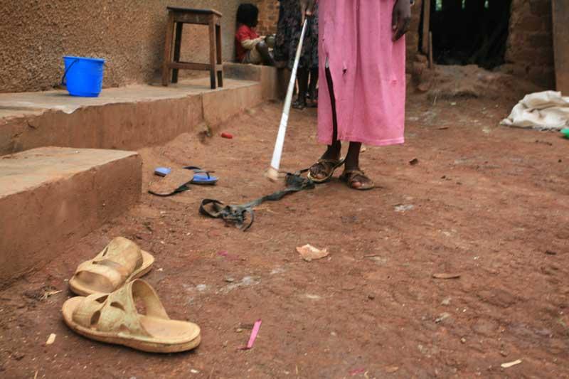 Christine fra Uganda må lære seg å bruke hvit stokk. Det er ikke lett. Foto: Glenna Gordon